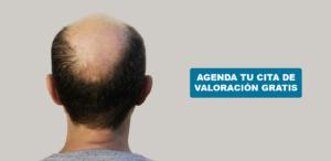 causas-perdida-cabello-hombres