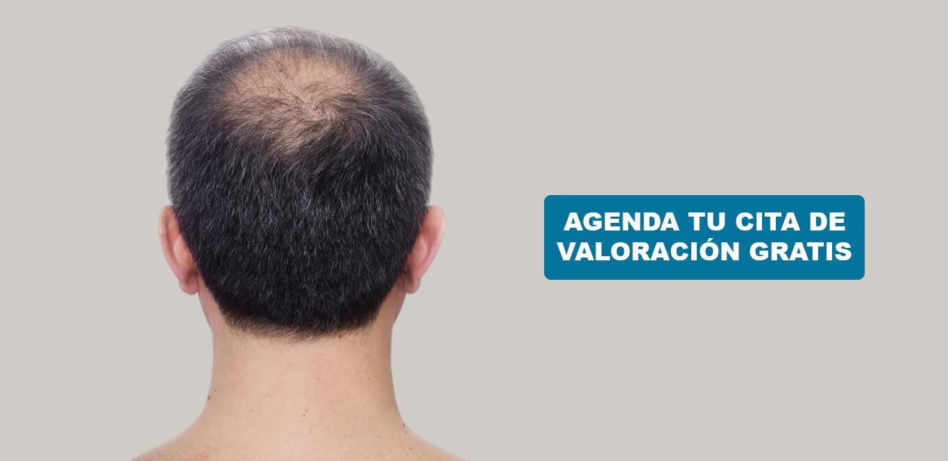 micro implantacion directa de cabello