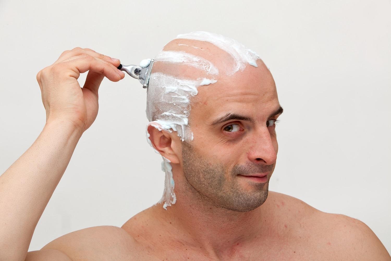 Afeitarse el cuero cabelludo no funciona para prevenir la calvicie