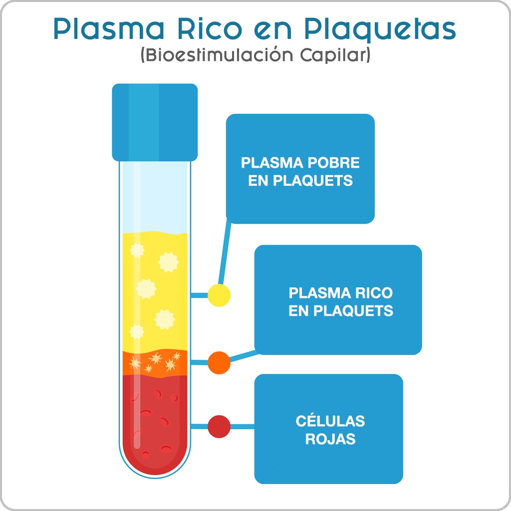 PRP-plasma-rico-en-plaquetas-bioestimulacion-capilar-tijuana-mexico-cdmx-clinica-cabello