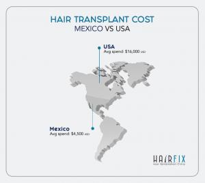 hair_transplant_cost_price_tijuana_mexico_usa_hair_implant