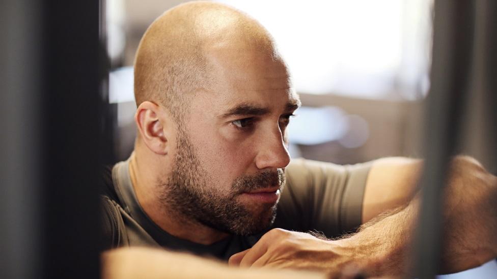 Esteroides y alopecia