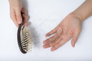 El ejercicio y su influencia en la perdida de cabello